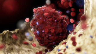 People with rare blood clots after a COVID-19 jab share an uncommon immune response